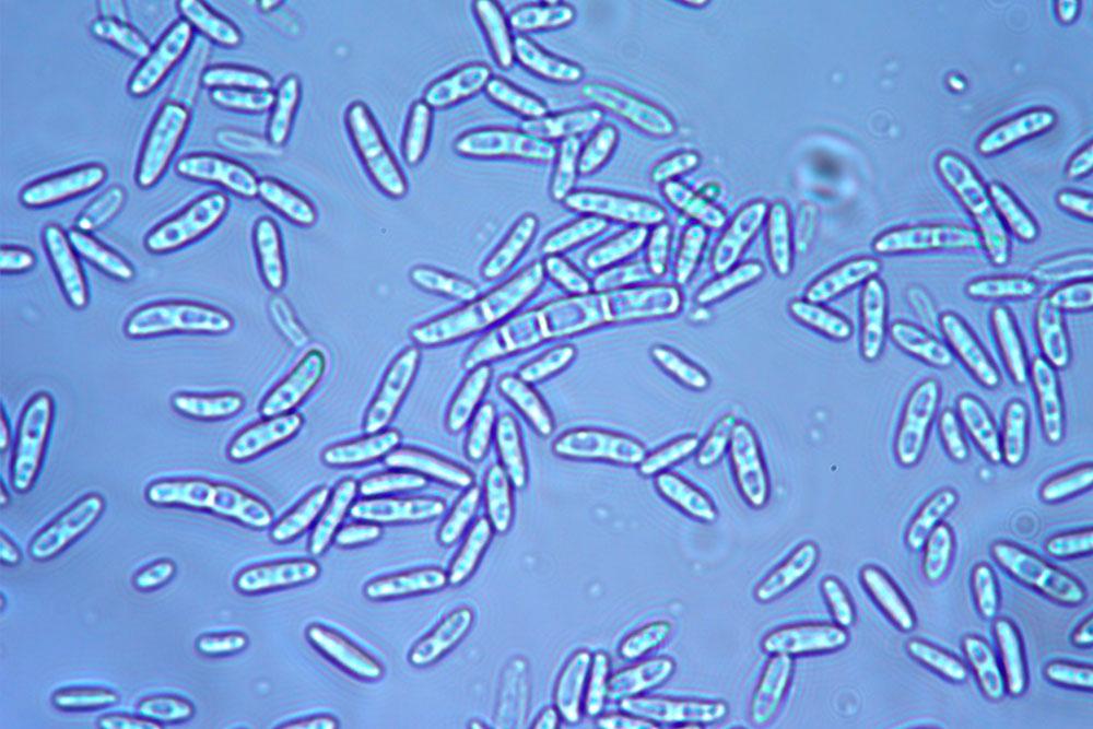 Microconidi e macroconidi